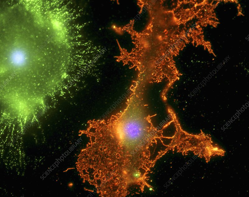 Brain cells in culture, light micrograph