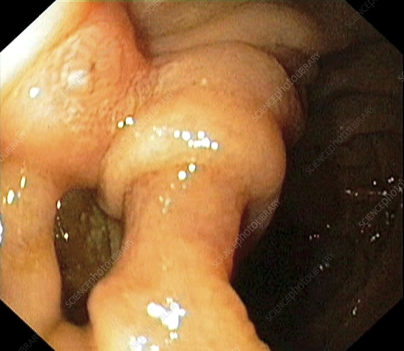 Diverticulum of the small intestine