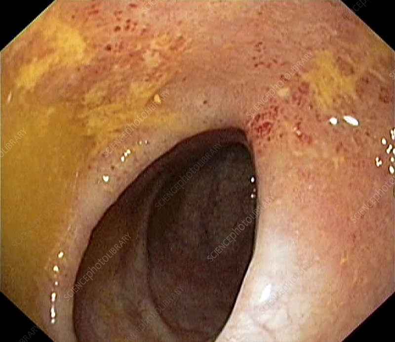 Ulcerative colitis of the colon