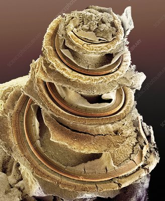 Organ of Corti, inner ear, SEM