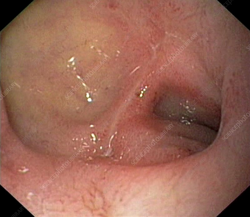 Scarred duodenal bulb