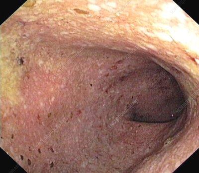 Sigmoid Colon Colitis