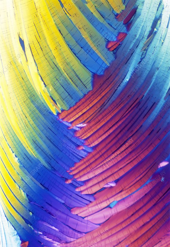 Cortisol crystals, light micrograph