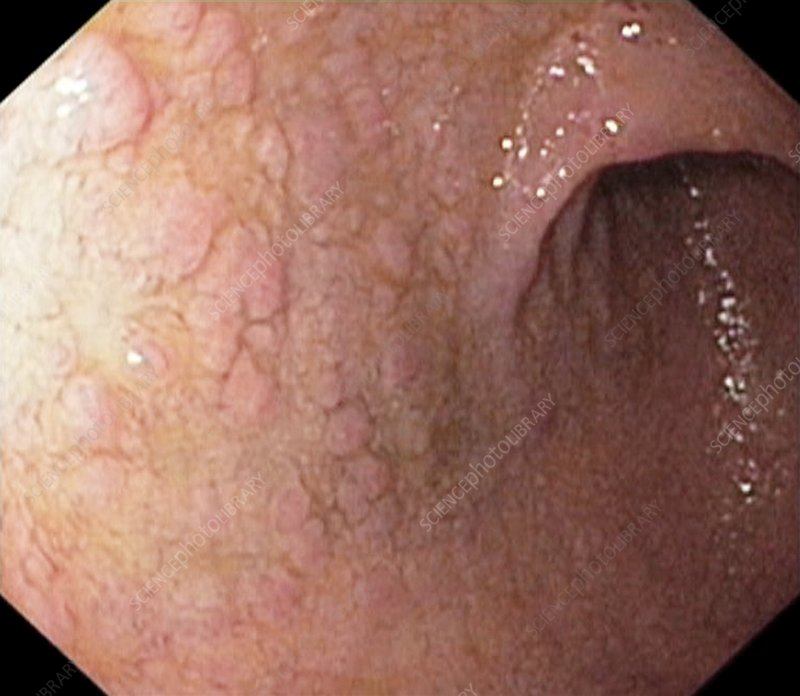 Gastric metaplasia in the duodenum