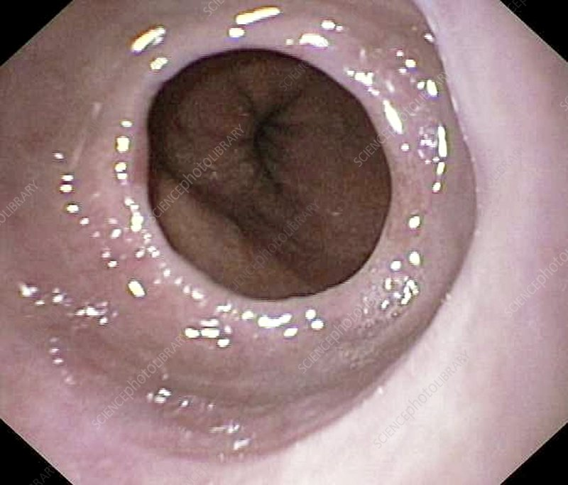 Oesophageal narrowing