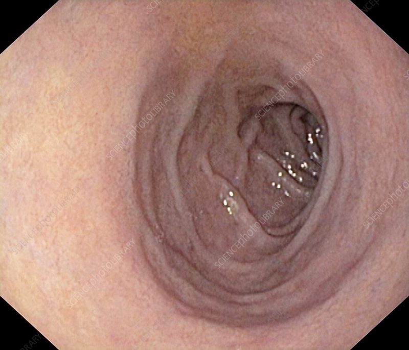 Healthy Duodenum Small Intestine Stock Image C0012989 Science