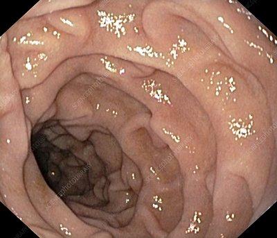Healthy duodenum, small intestine - Stock Image C001/2992 ...