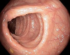 Healthy colon, large intestine