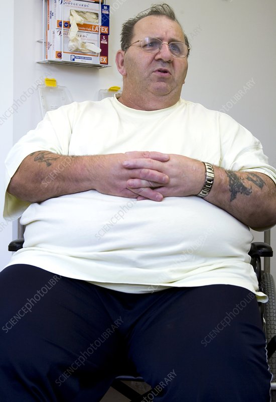 Obesity clinic patient