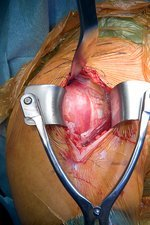 Shoulder joint re-surfacing surgery