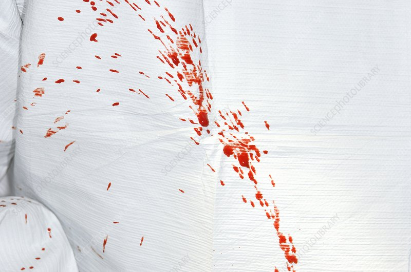 Surgeon's gown spattered with blood