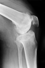 Osteoarthritis of the knee, X-ray