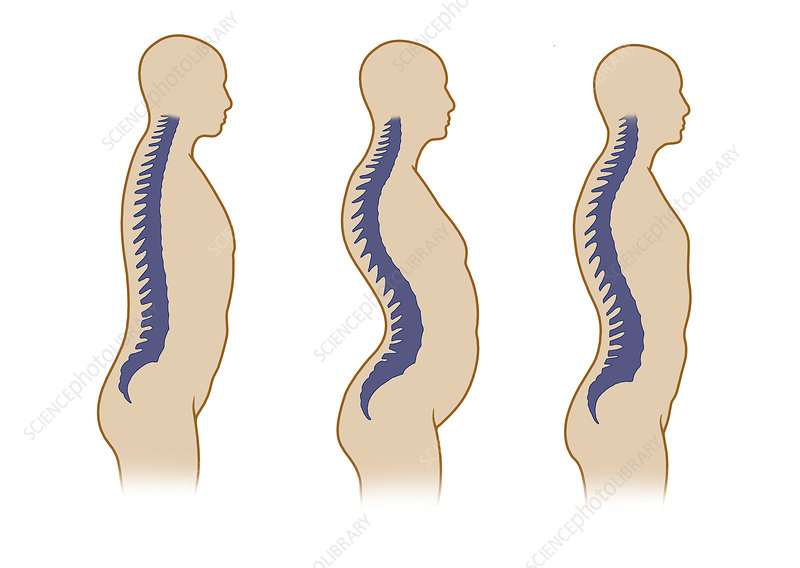 Spinal Curvatures