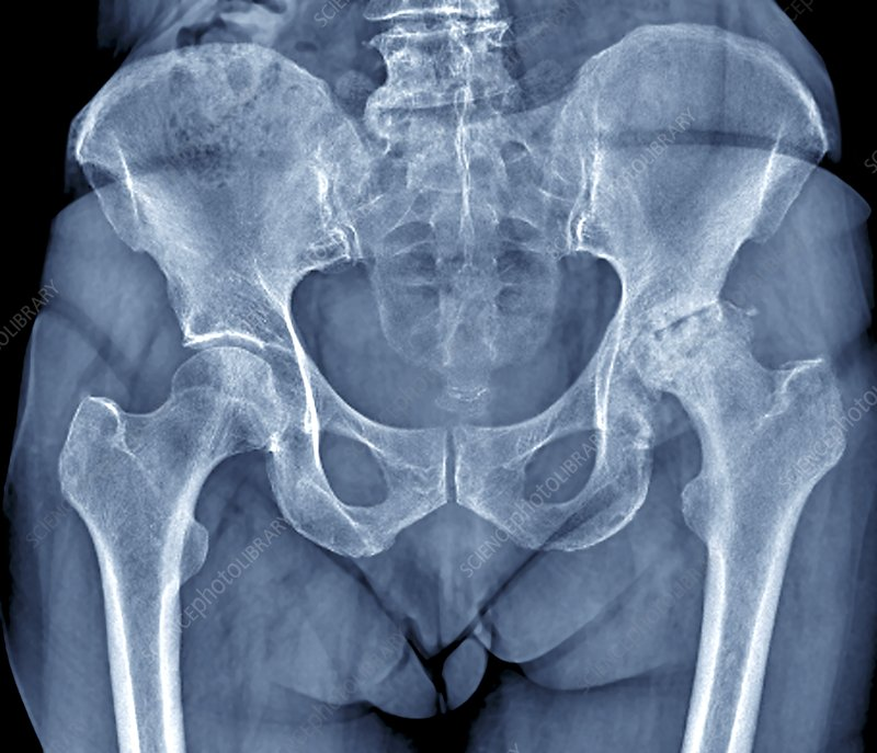 Osteoarthritis of the hip, X-ray