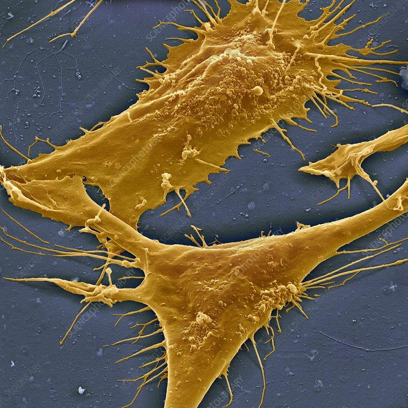Fibroblasts, SEM