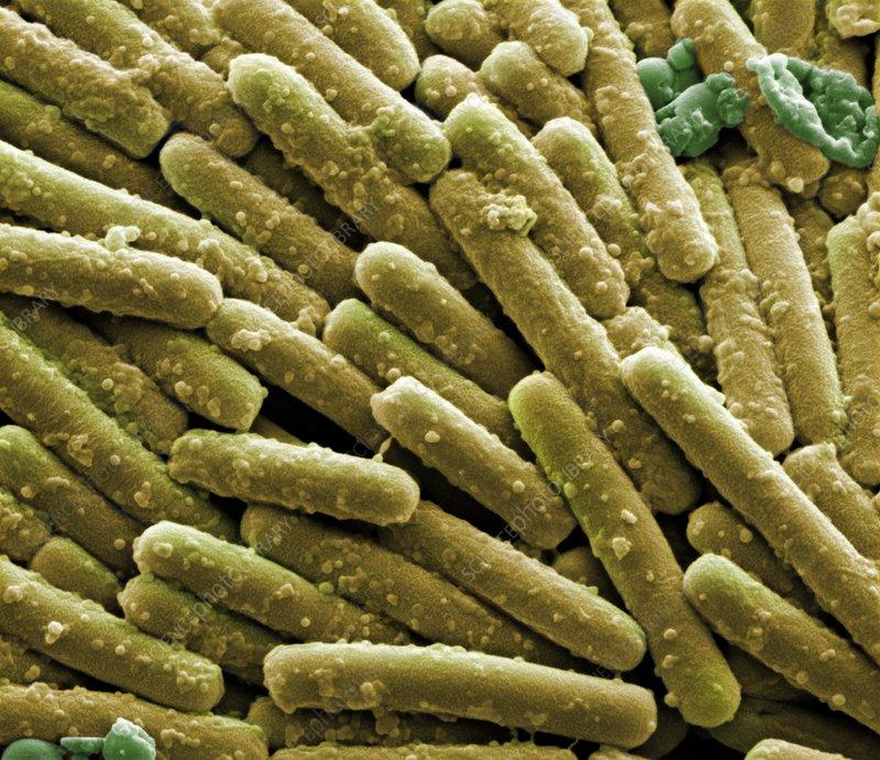 Clostridium difficile bacteria, SEM