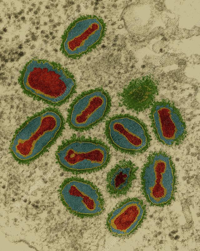 Smallpox viruses, TEM