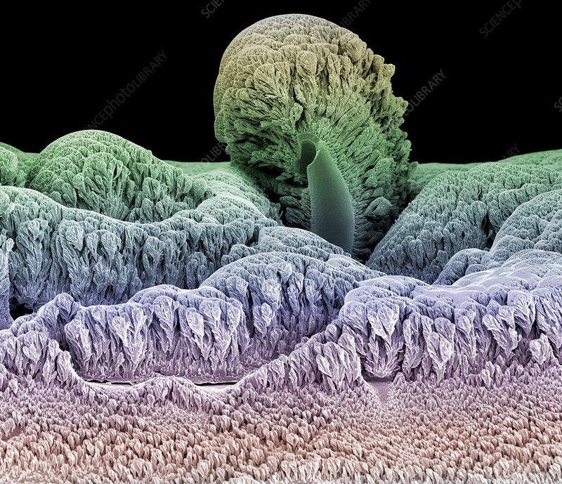 Tungsten crystals, SEM