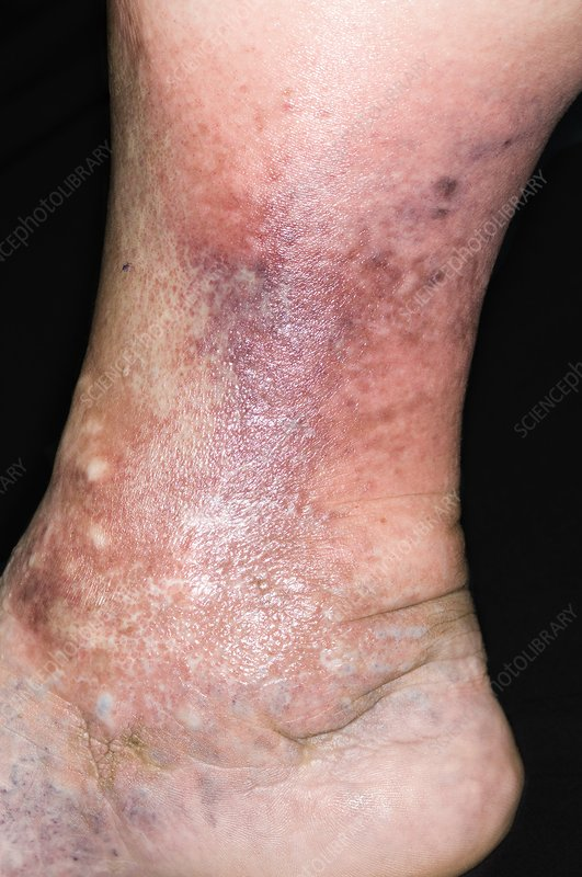 Cellulitis of the leg
