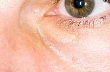 Xanthelasma growth