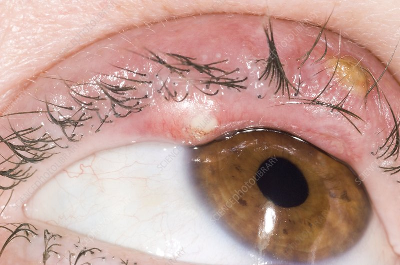Eye abscesses