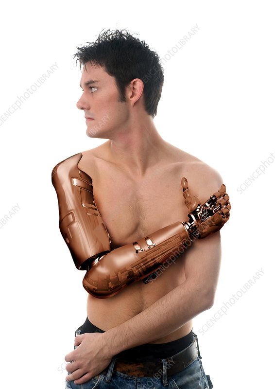 Cybernetic arm, composite image