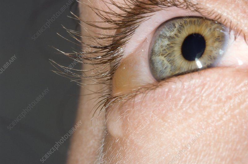 Allergic conjunctivitis and oedema