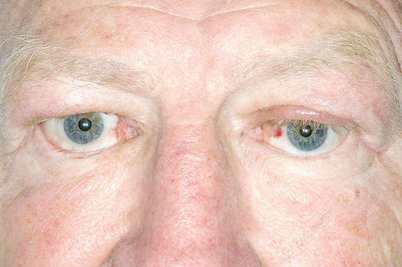 Treated Graves' ophthalmopathy