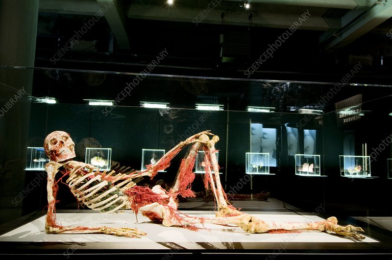 Plastinated body exhibit