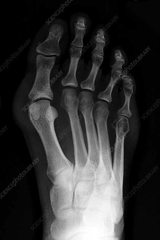 Bunion, X-ray