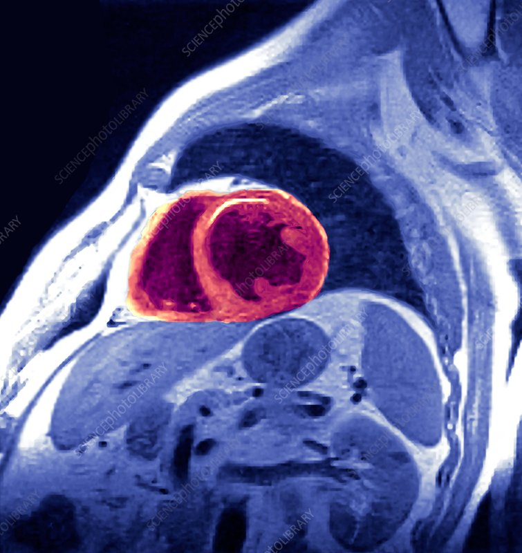 Heart disease, MRI scan