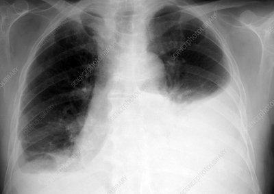 Pleural Effusion Chest X-ray