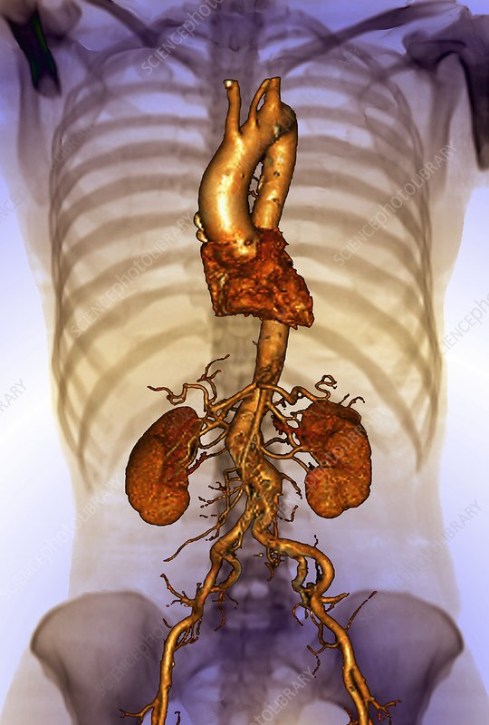 Torso blood vessels, 3D CT scan