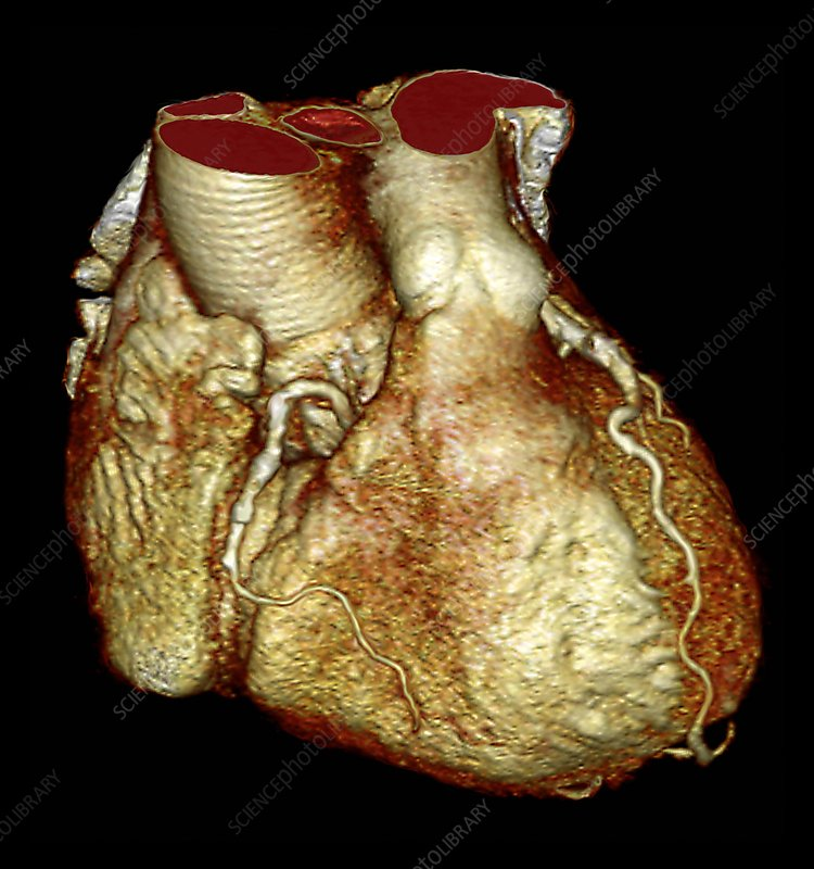 Healthy human heart, 3D CT scan