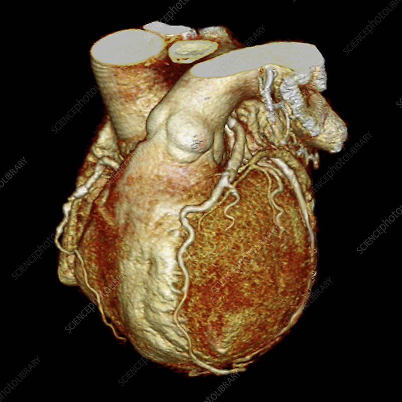 Diseased human heart, 3D CT scan