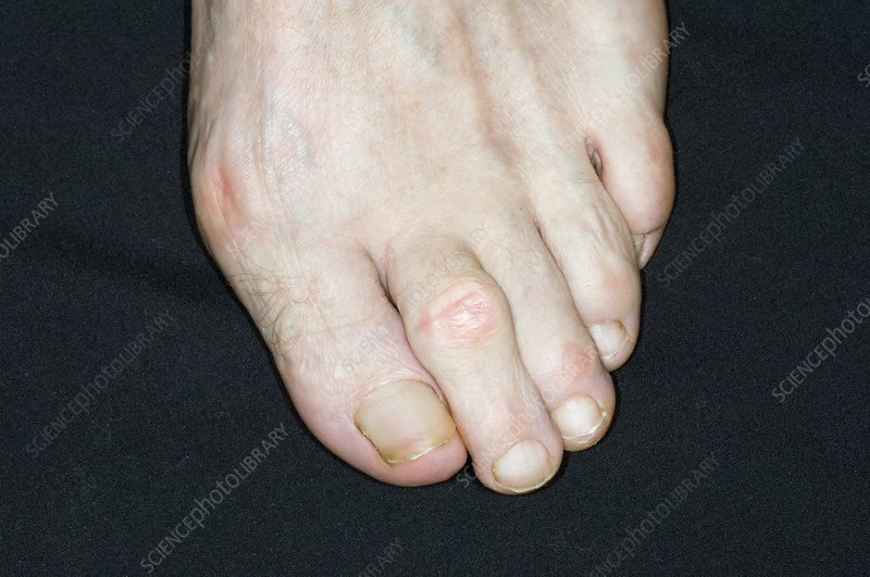 Bunion and hammer toe