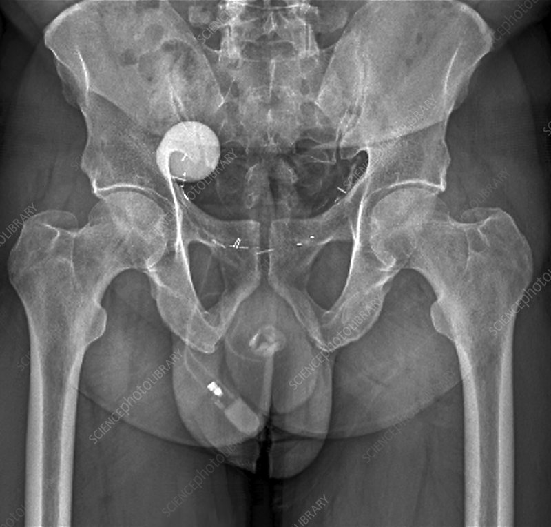 Artificial bladder sphincter, X-ray