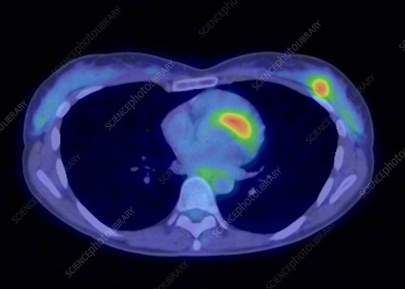 Breast cancer, PET scan