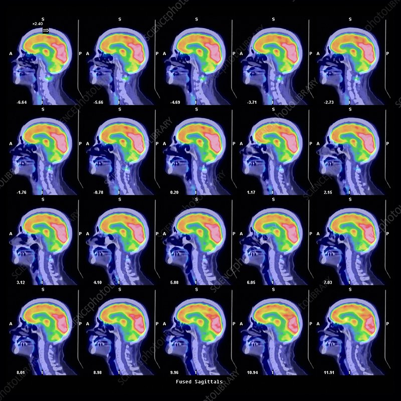 Human brain, PET scans