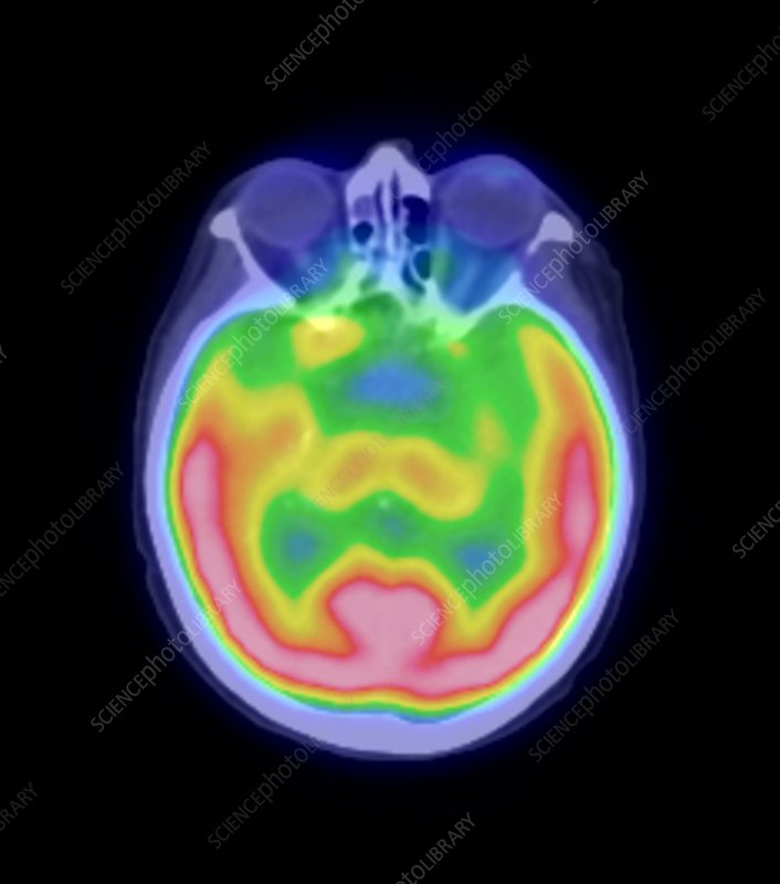 Human brain, PET scan