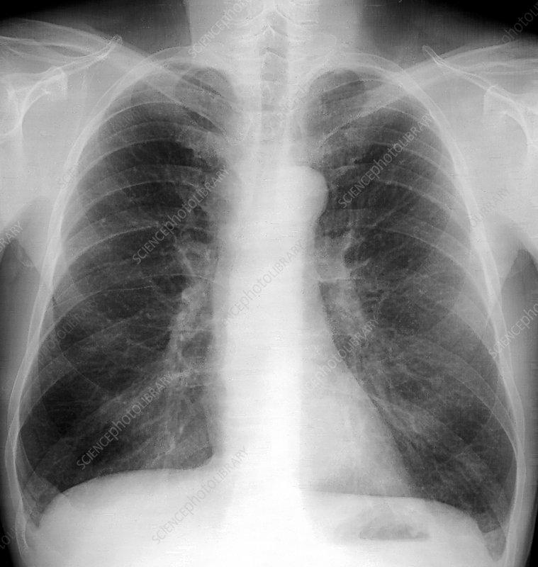 Smoker's lungs, X-ray - Stock Image C001/7637 - Science ...