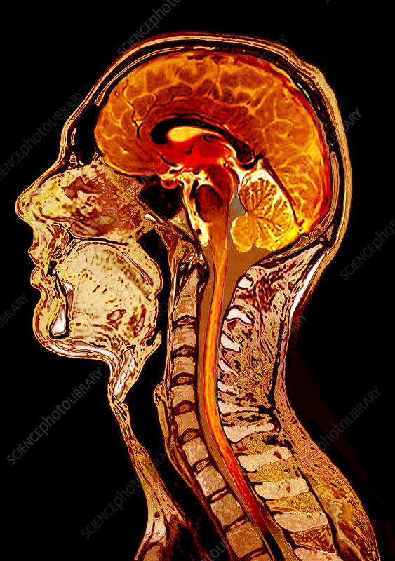Normal brain, MRI scan