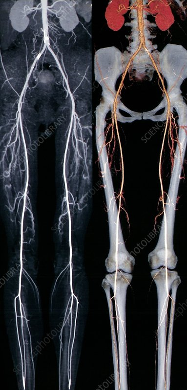 Normal leg arteries, angiograms
