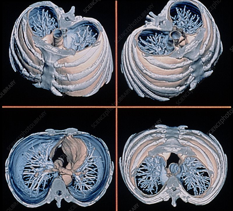 Normal lungs, 3D CT scans