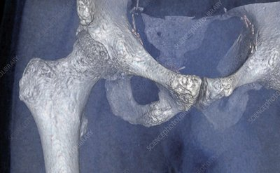 Secondary bone cancer, 3D CT scan