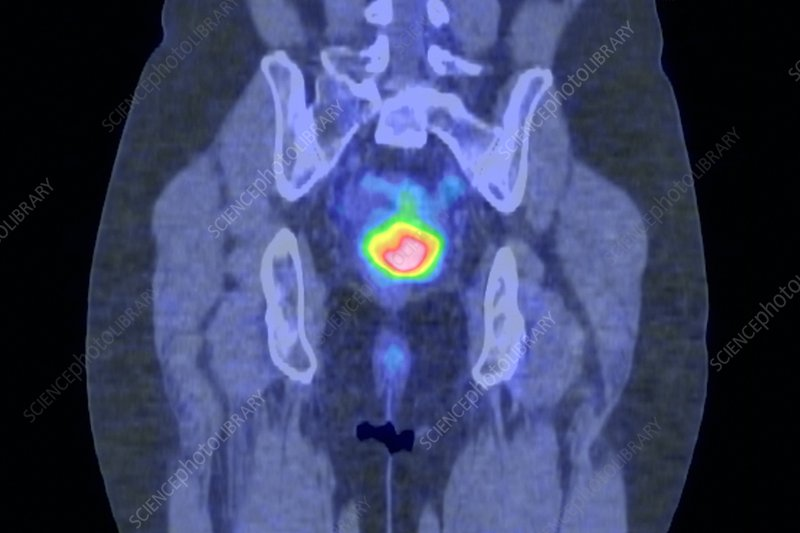 Cervical cancer, CT and PET scans