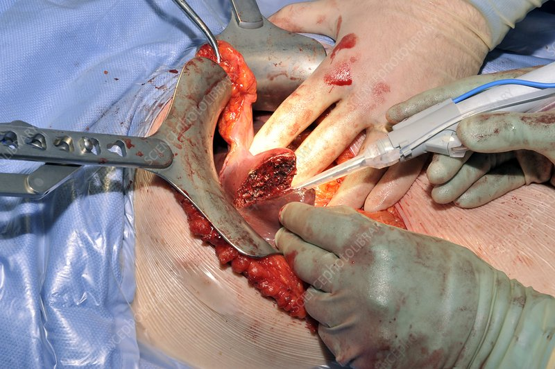 Gall bladder cancer surgery