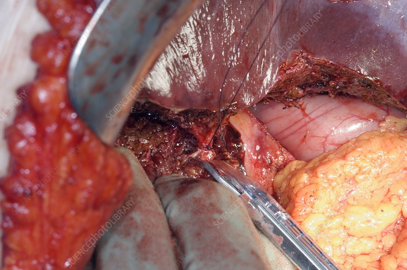 Gall Bladder Cancer Surgery Stock Image C001 8047