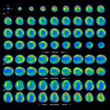 Enlarged heart, CT and PET scans