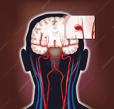 a description of brain aneurysm a bulge formed by the ballooning of the wall of an artery or a vein An abdominal aortic aneurysm (aaa) is a blood-filled bulge or ballooning in a  part  it is not known what exactly causes an abdominal aneurysm in some  people the ballooning may be caused by a weakness in the wall of the aorta  where it has  some doctors believe that this inflammation may be due to  clogged arteries.